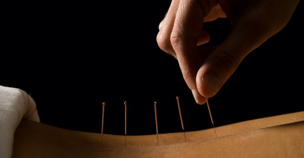 Another Acupuncture Story